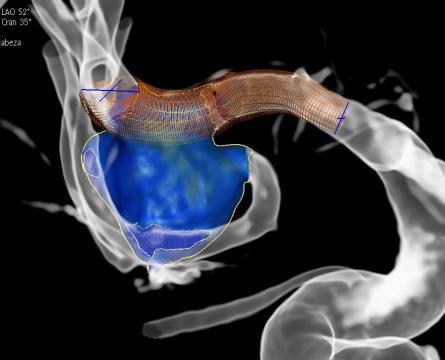 Vascular Neurology Fellowship homepage photo