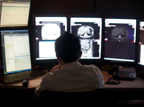 Radiology Neuroradiology Fellowship