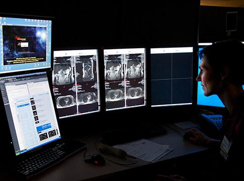 Vascular radiology